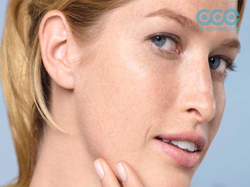 Cách khắc phục khi bị nám da hiệu quả tại nhà