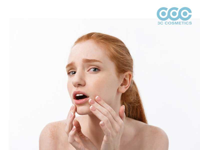 4 cách điều trị đốm da hiệu quả