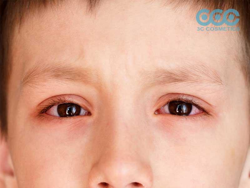 nổi mề đay quanh mắt