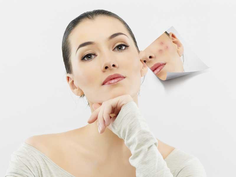 Chăm sóc da sau khi nặn mụn sao cho đúng cách